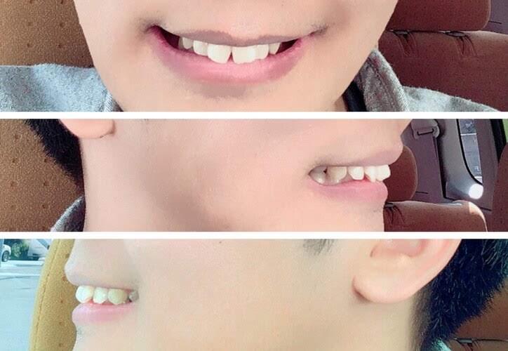 セラミック治療前の前歯2本(出っ歯&すきっ歯)