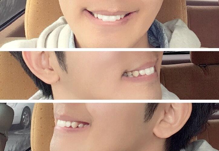 セラミック治療後の前歯2本