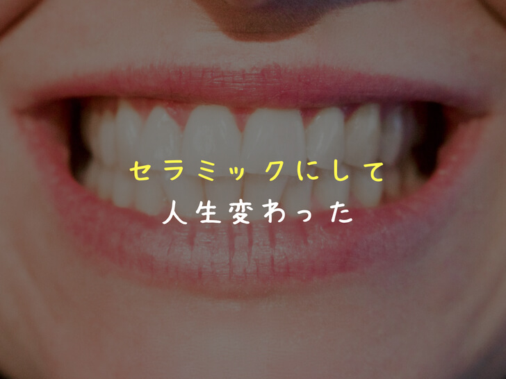 【写真あり】出っ歯な前歯2本をセラミックに!後悔しない治療のコツも公開!(体験記)