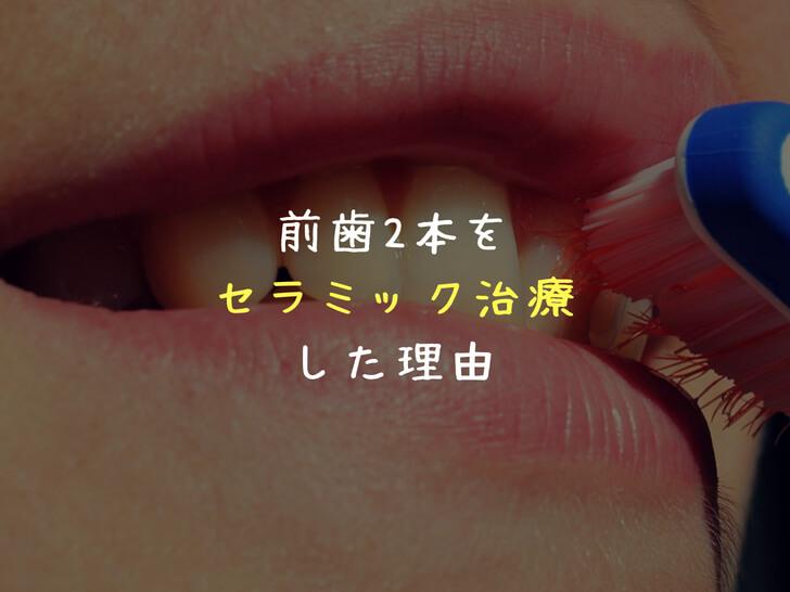 セラミックで出っ歯&すきっ歯を改善!前歯2本だけ治療した理由